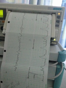 Heartbeat and Contractions